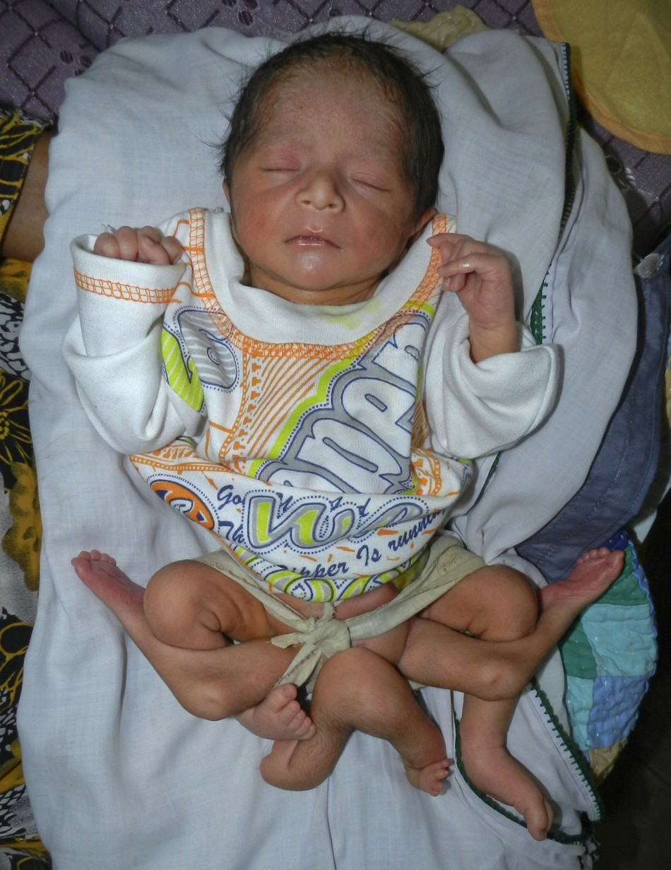 Baby Boy With Six legs Born in Pakistan