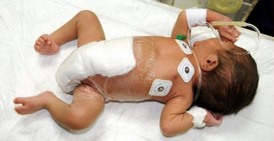 Pakistani Doctors Remove Extra Limbs of Six Legged Baby